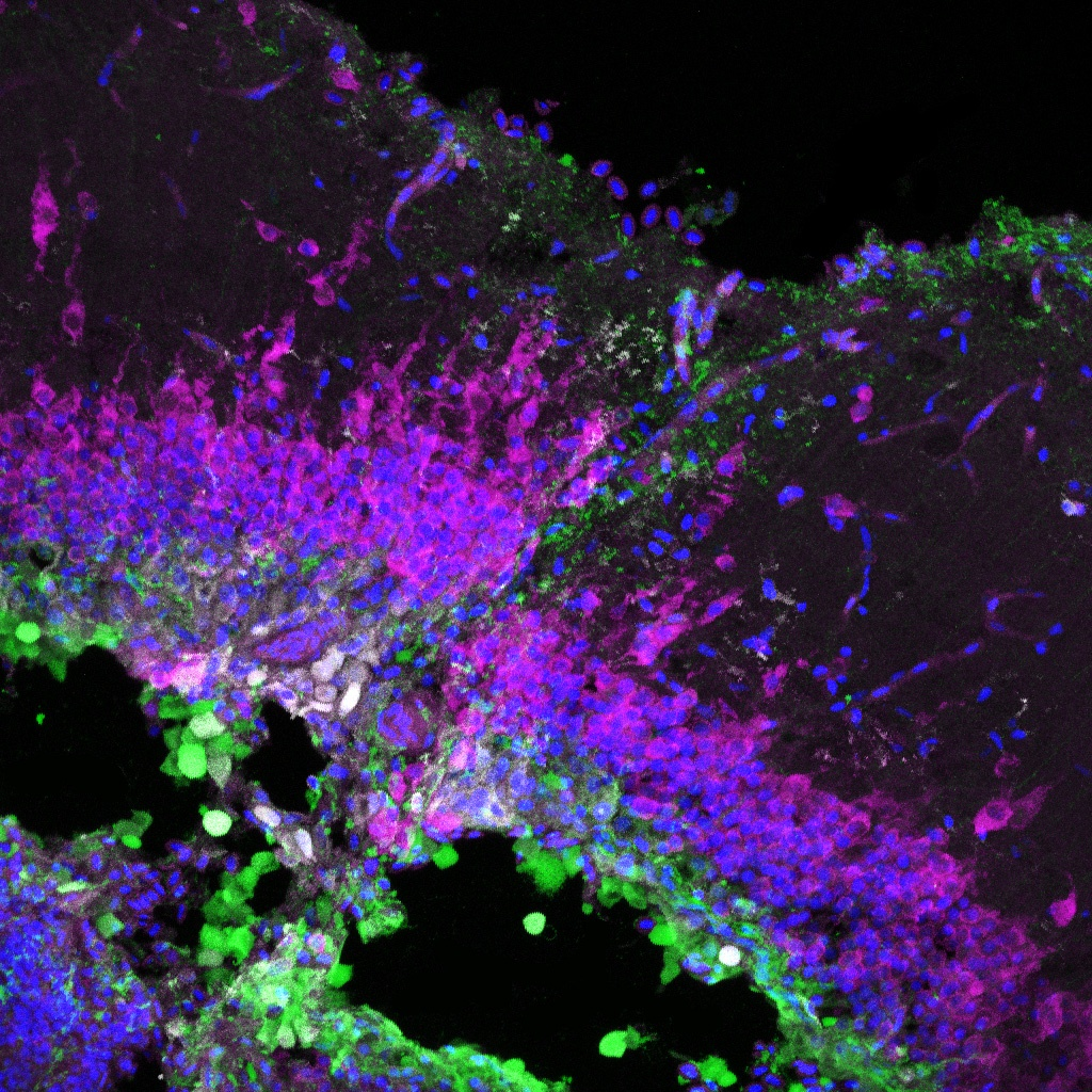 Stab injury to the adult zebrafish tectum displaying the disrupted quiescent radial-glial layer in green, neurons in pink, and DAPI counterstain in blue